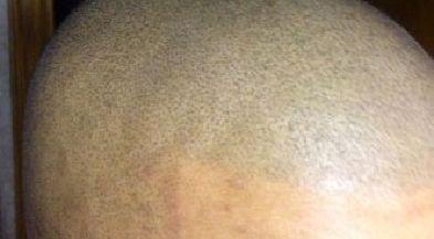 kosmetisk tatuering hårbotten