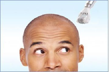 tatuera hår på huvudet